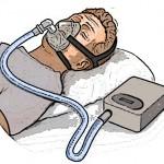 無呼吸症候群